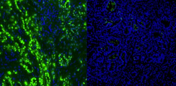 Células de cancro no pâncreas aparecem a verde (à esquerda). Após o tratamento de seis dias, elas desapareceram (à direita)