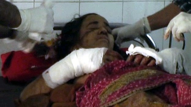 Kamla Devi no hospital, depois de ter sobrevivido a um ataque de leopardo e de matar o felino