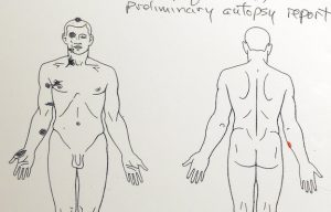 Conclusões da autópsia preliminar feita ao corpo de Michael Brown