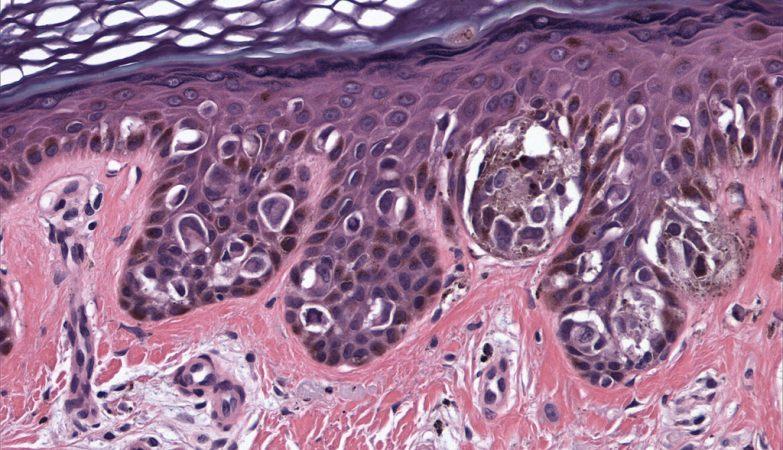 Melanoma maligno, padrão de propagação superficial