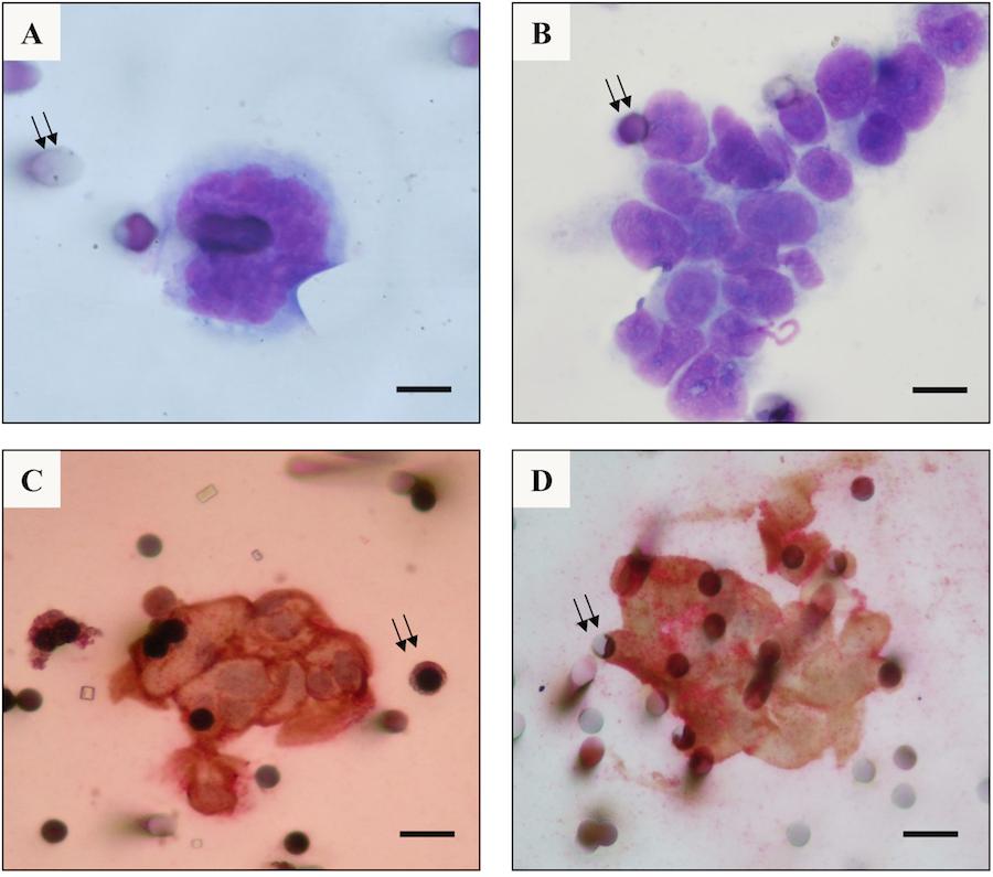 """Análise citomorfológica e imunocitoquímica de """"sentinelas"""" CTS - células cancerígenas circulantes"""