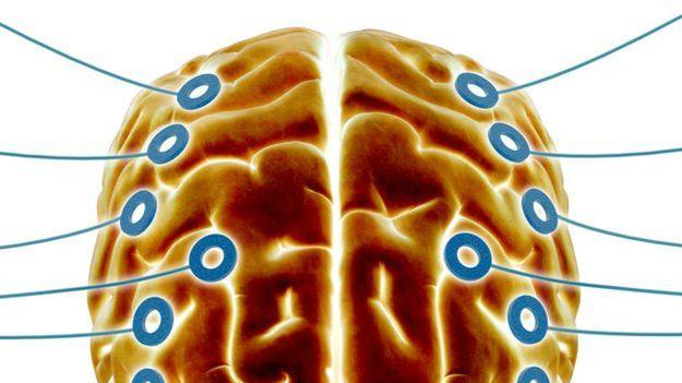 O EEG monitoriza e regista a actividade eléctrica do cérebro.