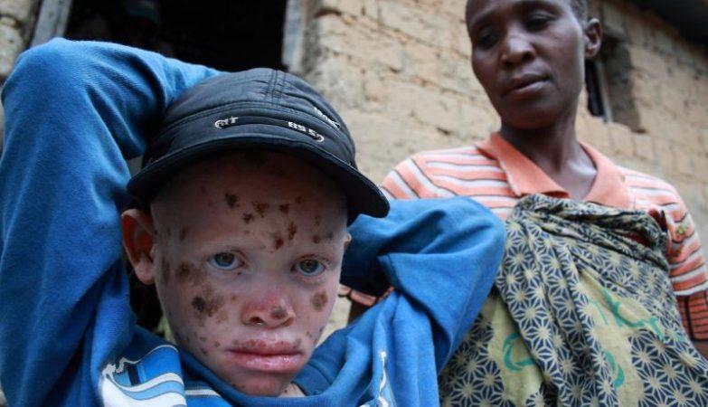 Na Tanzânia, os albinos são alvo de ataques, devido a crenças que atribuem poderes mágicos aos seus órgãos