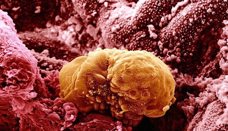 Embrião humano com 6 dias