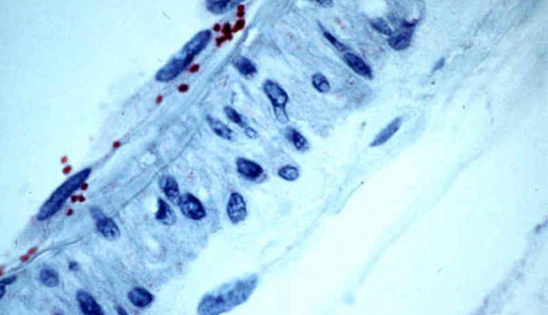 Imagem microscópica colorida da bactéria Rickettsia felis