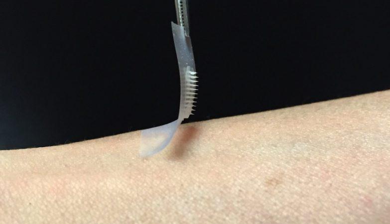 O novo emplastro de insulina funciona rapidamente, é fácil de usar
