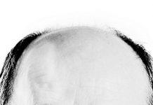 2bdbf538f70 Empresa britânica diz ter o método derradeiro para curar a calvície ·  Ciência   Saúde