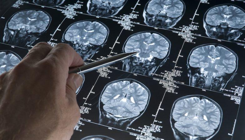 Resultados de uma Ressonância Magnética Nuclear ao cérebro de um doente com Alzheimer