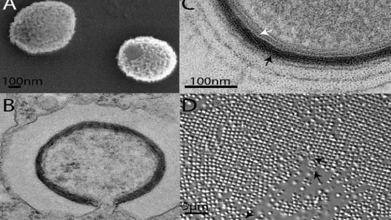 Resultado de imagem para virus descoberto na siberia fotos