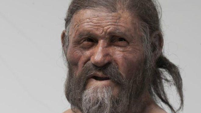 De acordo com os cientistas, Ötzi o Homem de Gelo sofria de infeção bacteriana ainda presente nos dias de hoje