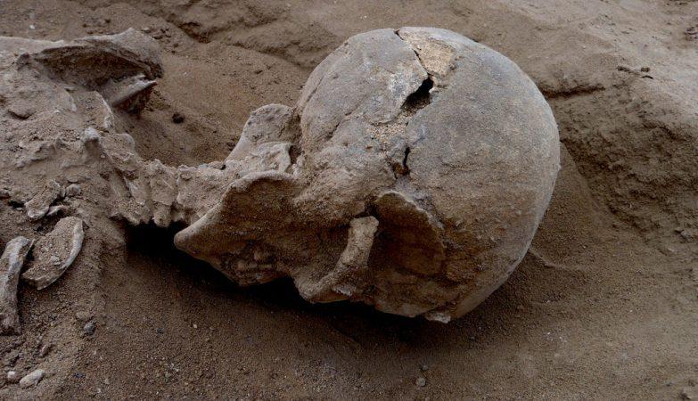O esqueleto com 10.000 anos de um dos homens encontrados na costa do antigo laga Turkana, no Quénia, com sinais de um ferimento no crânio.