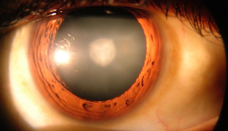 Um olho humano com cataratas