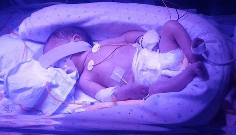 """Primeira foto de Lourenço, o """"bebé-milagre"""""""