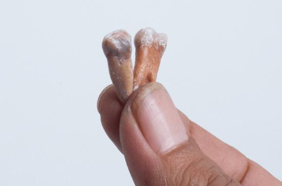 Restos fósseis de dentes do hobbit encontrados na ilha das Flores