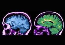 Ressonância magnética de cérebro normal (esquerda) e com esclerose múltipla (direita)