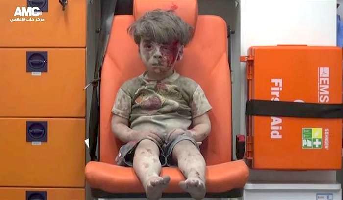 Omran Daqneesh sentado na cadeira de uma ambulância, depois de ter sobrevivido a um ataque aéreo na cidade de Aleppo, na Síria