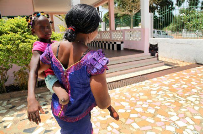 Nida da Silva, guineense, 36 anos, teve que fugir de casa porque o marido e o resto da comunidade em Nhacra, arredores da capital, queriam sacrificar a filha Nimade uma criança que nasceu com deficiência nas pernas e mãos.