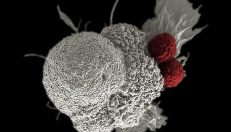 Célula cancerígena (a branco) a ser atacada por dois linfócitos T citotóxicos (a vermelho) num processo natural de resposta imune