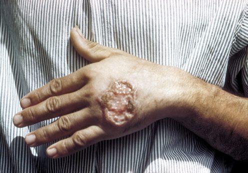 Úlcera cutânea causada pela Leishmaniose num adulto da América Central