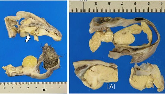 O tumor tinha pelos e uma estrutura em forma de cérebro coberta por osso craniano