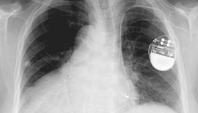Radiografia de um paciente com um pacemaker