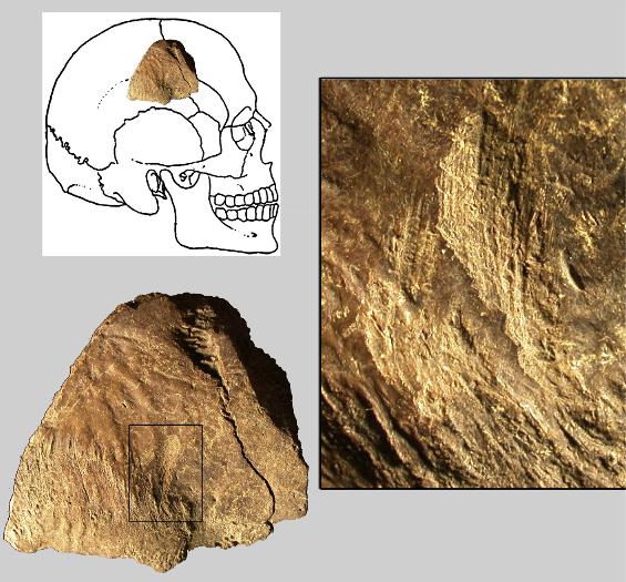 Fragmento de um crânio humano com marcas de cortes