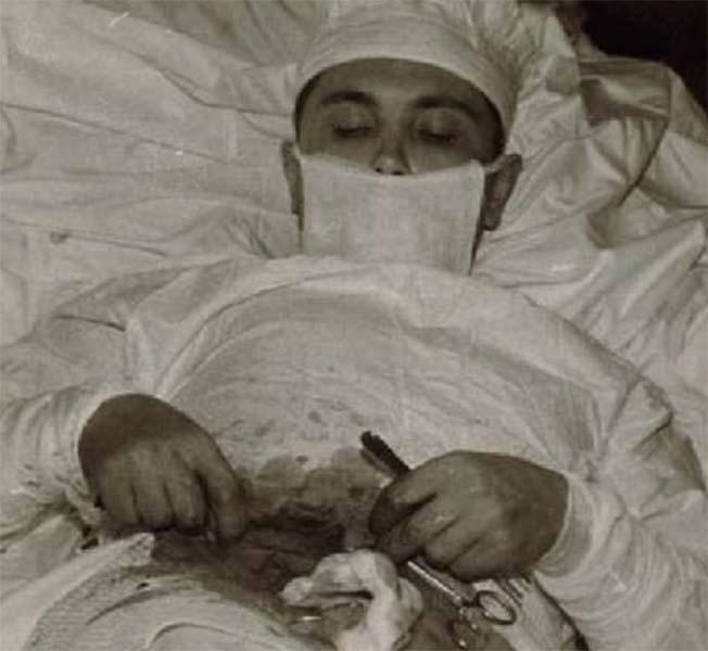 Médico russo Leonid Rogozov durante a auto-operação.