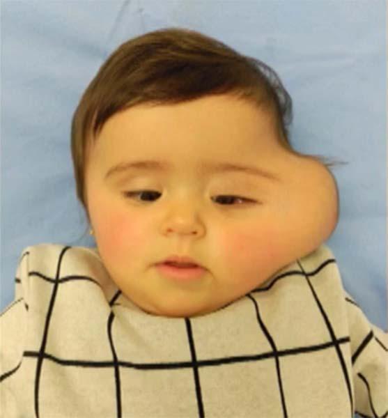 Cirurgia inédita no Centro Materno Infantil do Porto removeu parte do intestino da cara de bebé.