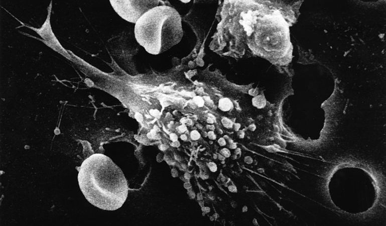 A primeira etapa de uma sequência de seis passos da morte de uma célula cancerígena