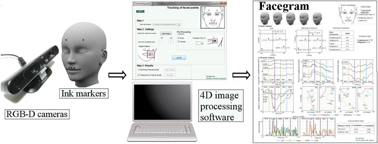 O Facegram permite quantificar objetivamente a progressão do paciente