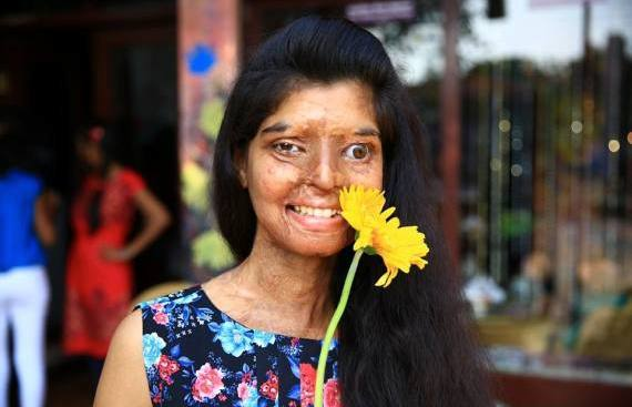 Ritu Saini foi atacada com ácido por não querer casar com o primo e acabou por perder um olho