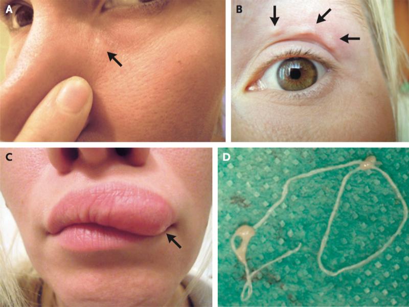 care sunt consecințele condilomului confluent reticulated papillomatosis pathology
