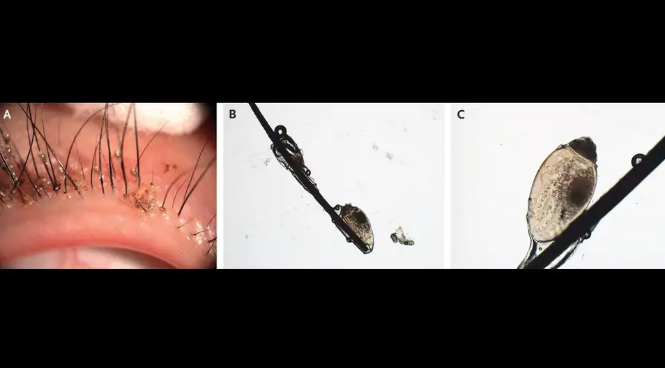 50962fa9b354709010e69caea30603e1 A rare case in China shows that it is possible to have lice in the eyelashes